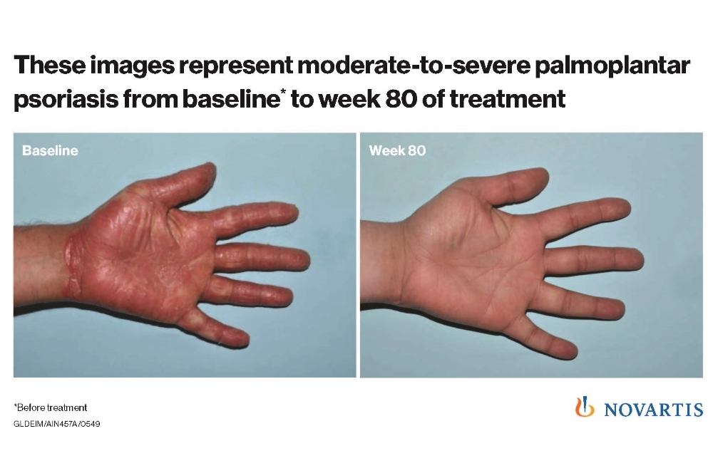 Novartis psoriasis treatment shows strong results
